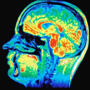 Neurological Genetic Test Img
